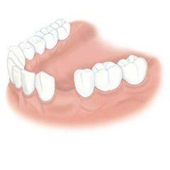 Адентия - повна або часткова відсутність зубів і їх зачатків