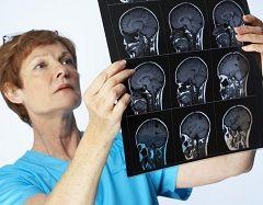 Поразка кори головного мозку - причина розвитку афазії