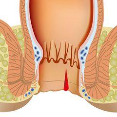 Геморой - одна з причин анальної тріщини