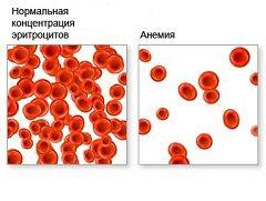 Зниження в крові гемоглобіну або еритроцитів - анемія