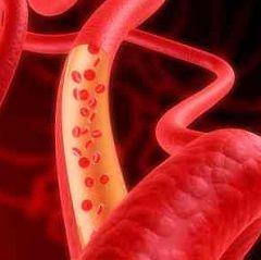Методи діагностики та лікування ангіодистонії