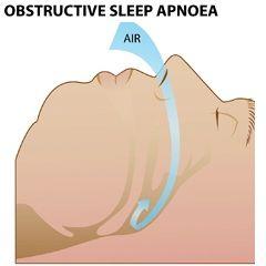 Апное - оставнока дихальних рухів
