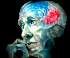 Набуте недоумство - хвороба Альцгеймера