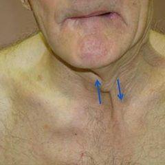 Бульбарний синдром - патологія черепних нервів