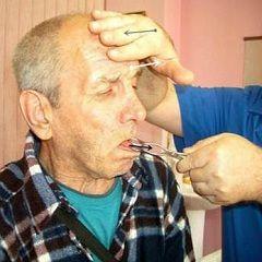 Методи лікування бульбарного синдрому