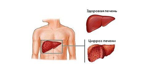 Цироз печінки: остання стадія