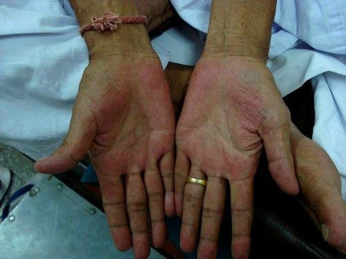 шкіра набуває нездоровий вигляд