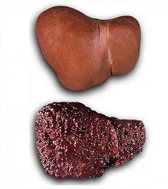 Цироз - найпоширеніше захворювання печінки