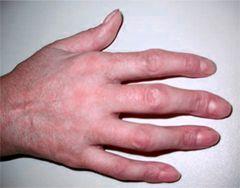 Деформація пальця рука