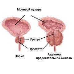 Прискорене сечовипускання - один із симптомів доброякісної гіперплазії передміхурової залози