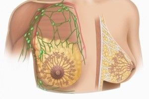fibroadenomu