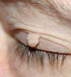 Невеликий наріст на тілі - основний симптом фіброми