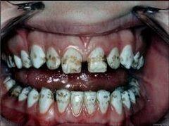 Середня форма флюорозу зубів