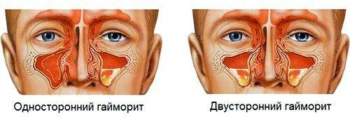 Симптоми різних форм патології
