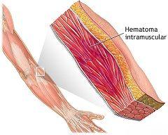 Припухлість і зміна кольору шкіри - перші ознаки гематоми