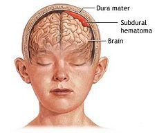 Субдуральна гематома головного мозку