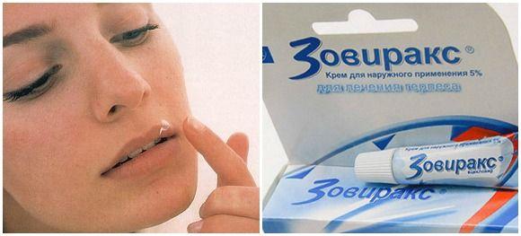 Мазь для лікування герпесу на губах при вагітності