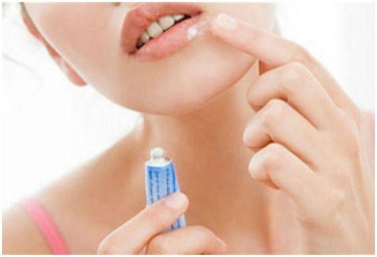 Лікування герпесу на губах маззю