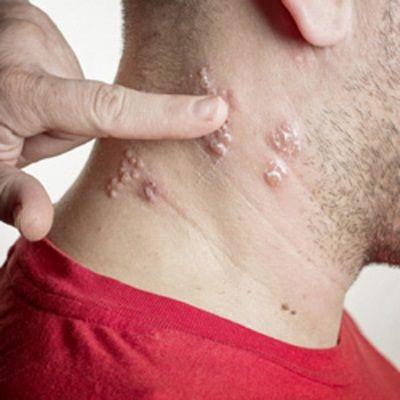 Дрібні бульбашки наповнені рідиною при висипаннях викликаних вірусом герпесу