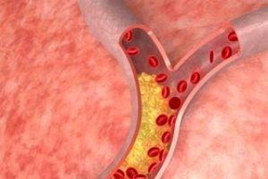 giperlipidemiia