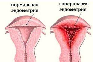 giperplazija matki