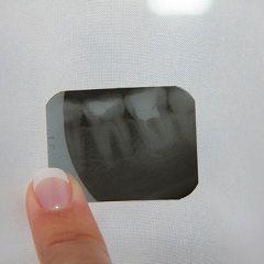 Методи діагностики та лікування гранульоми зуба