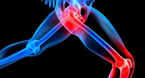 При коліті можуть спостерігатися болі в суглобах
