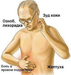 Узагальнені симптоми всіх видів холангіту