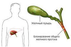 Холангит - захворювання, що виникає через запалення жовчних протоків печінки