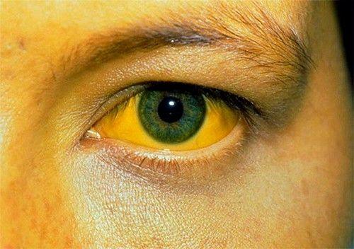 Жовтяниця - можлива ознака холециститу