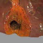 Холецистит - захворювання жовчного міхура
