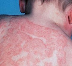 Екзема - дерматологічне захворювання