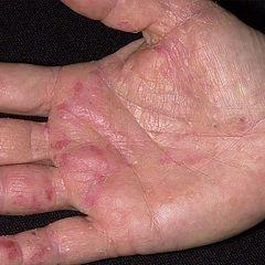 Специфічні висипання на шкірі - основний симптом екземи