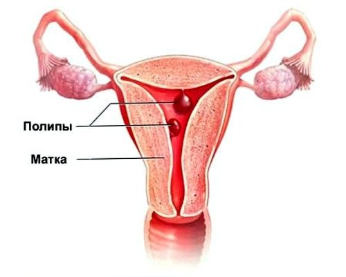 У жінок старше 35 років часто діагностують поліпоз ендометрія матки