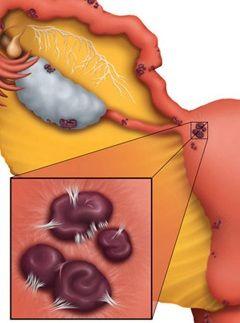 Маткові кровотечі - один із симптомів ендометріозу