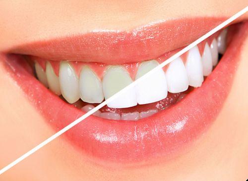 Відбілити зуби в домашніх умовах - міф чи реальність