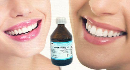 Вибілюємо зуби за допомогою перекису