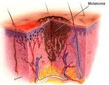 Як проводиться диференціальна діагностика меланоми
