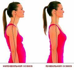 Як взаємопов`язані здорова спина і правильна постава?