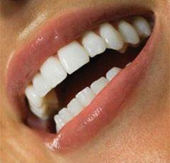 Як зберегти зуби міцними і здоровими