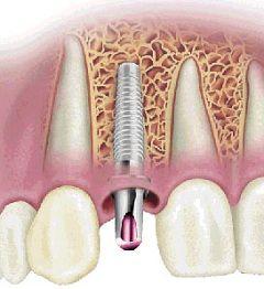 Як відновити зуби за допомогою штифтів
