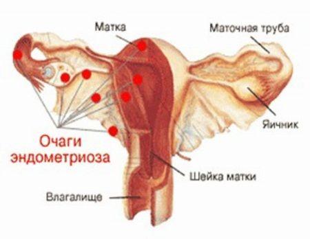 Ендометріоз при загині матки - причина безпліддя