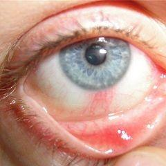 Кератит - запалення рогівки ока