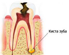 Кіста на корені зуба - це нагадує пухлина новоутворення