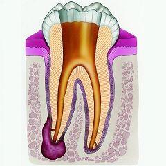 Невилікуваний карієс - одна з причин кісти зуба