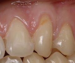Клиновидний дефект емалі зуба