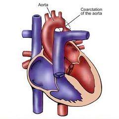 Коарктация аорти - вроджена патологія серця