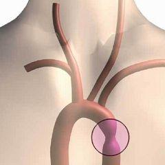 Методи лікування коарктації аорти
