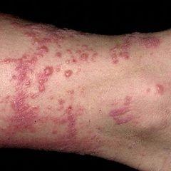 Характерний висип - основний симптом контактного дерматиту