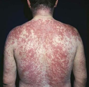 алергічна кропив`янка